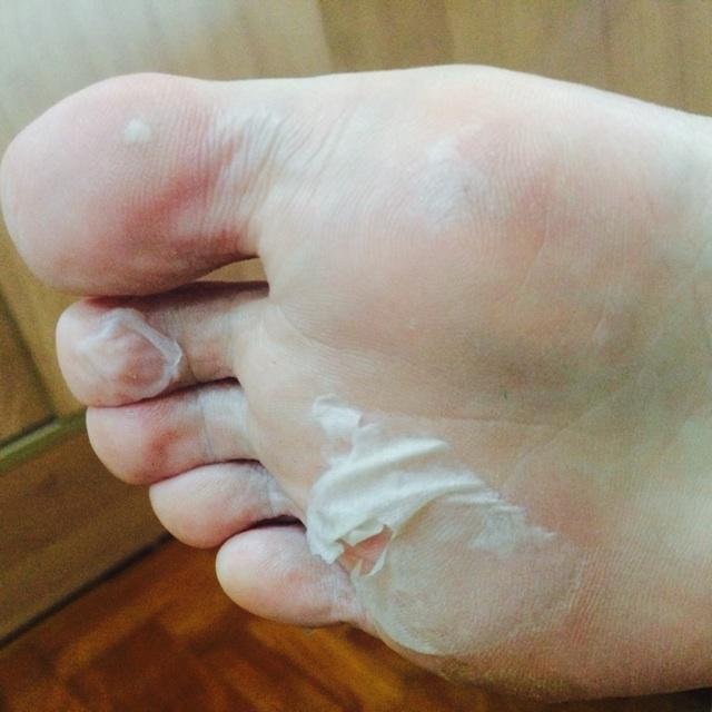 how to help peeling feet
