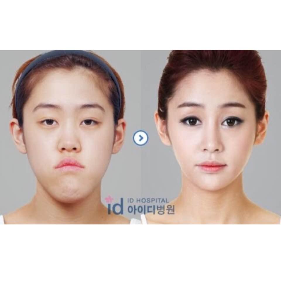 My double eyelid surgery - orangelips - Dayre