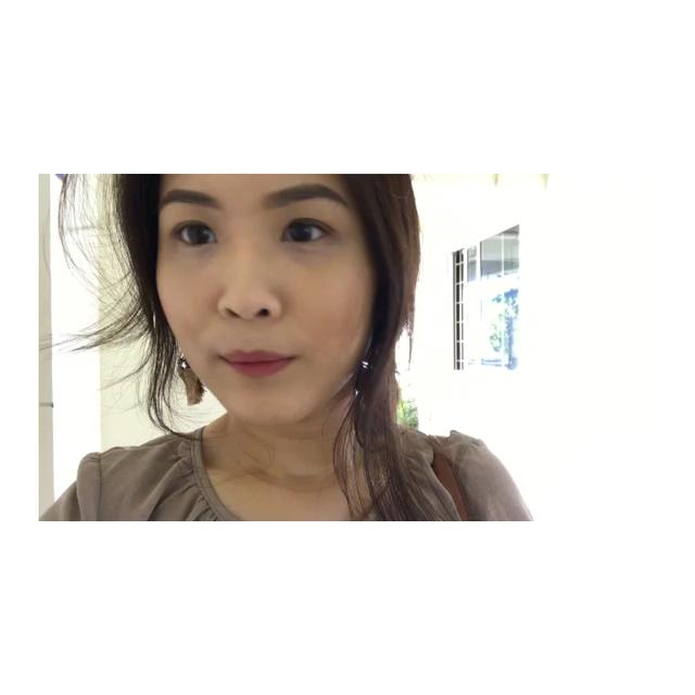👀 Double Eyelid Surgery (continued) - joxnna - Dayre