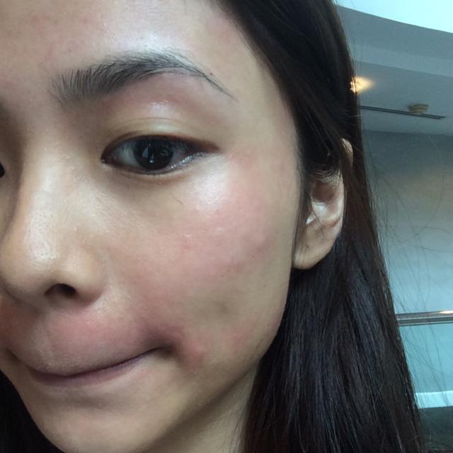 Hives after facial threading