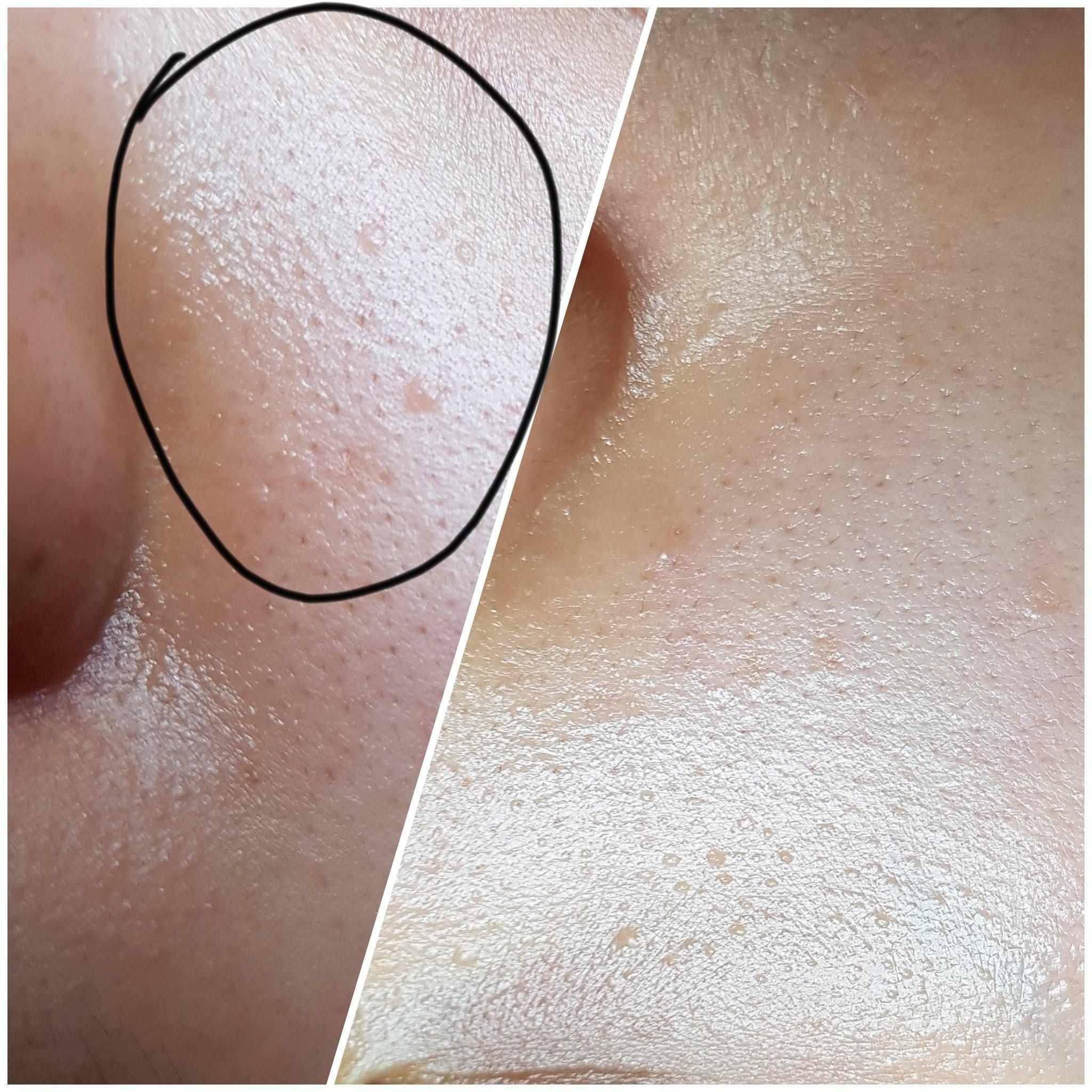 FUNGAL ACNE & tiny bumps?????? 😦 - lebatasirhc - Dayre