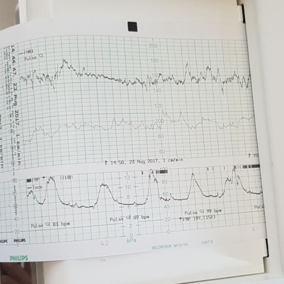 Contractions 5 Minutes Apart: Birth Story 👶